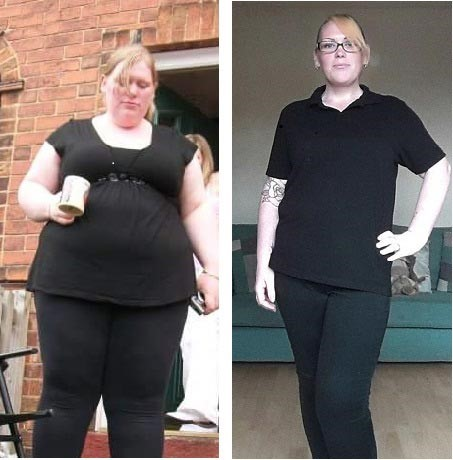Cheryl Young before and after her gastric bypass surgery