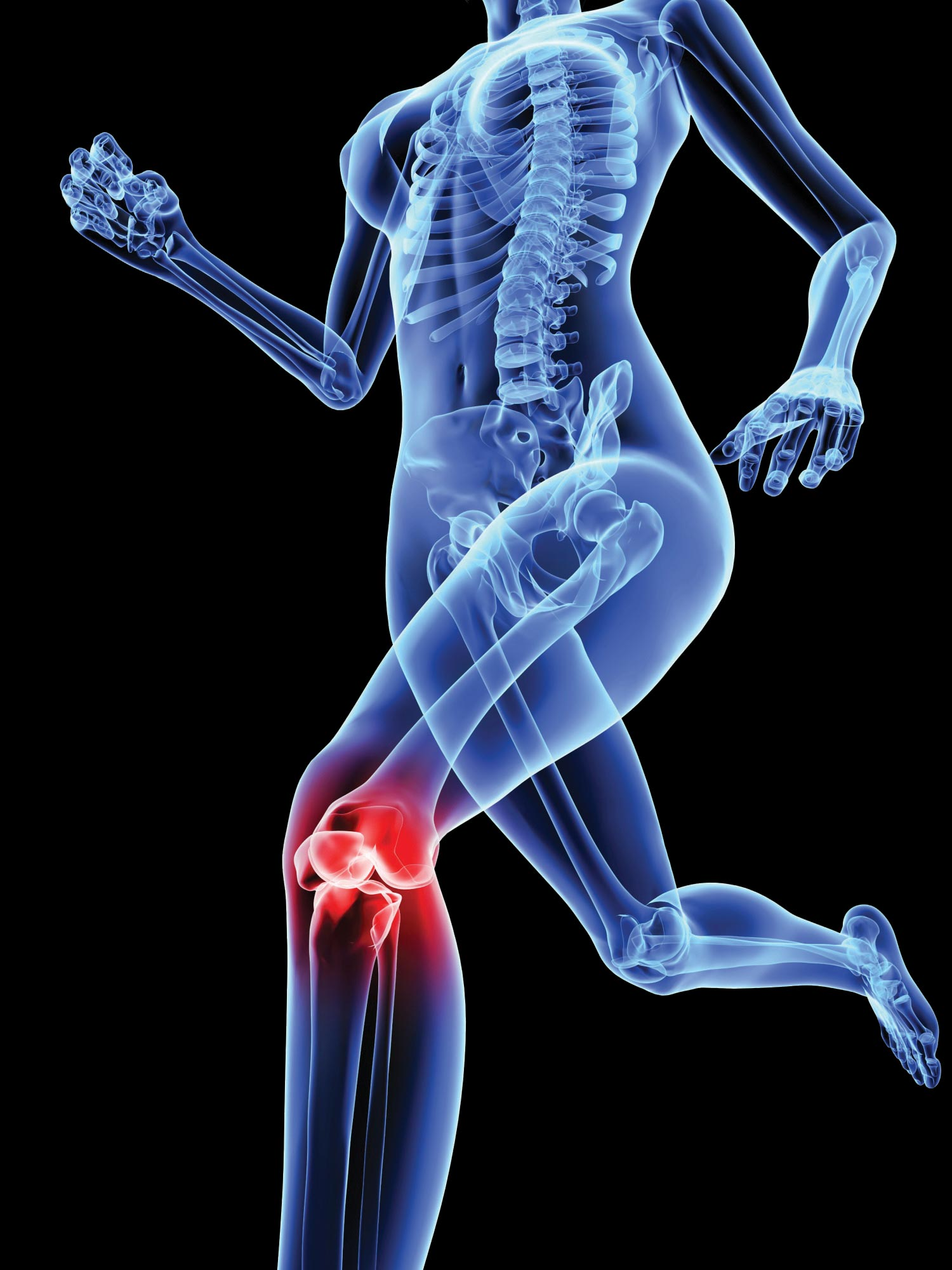 Hip and knee pain information evening