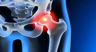 Are you considering hip replacement surgery?