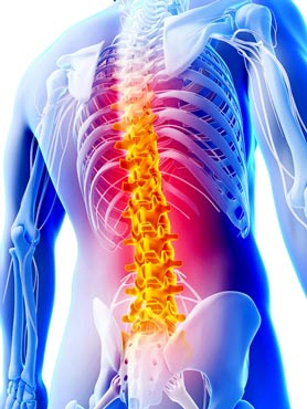 Free information event on common back problems