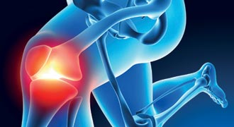 Early diagnosis is key to successful treatment of arthritis