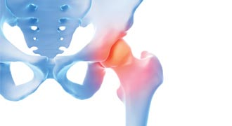What is causing your hip pain?