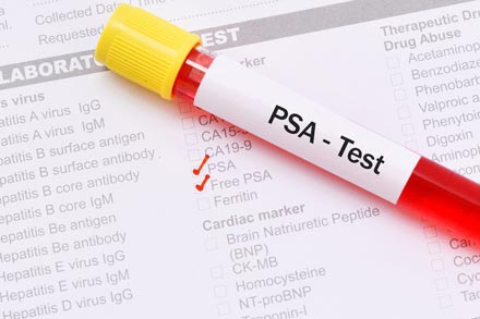 Free PSA test to check for prostate cancer