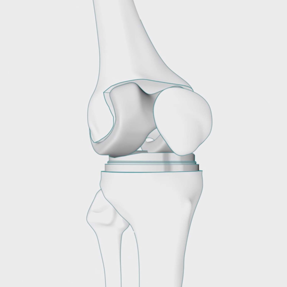 Knee Replacement | Total Knee Replacement Surgery | Spire