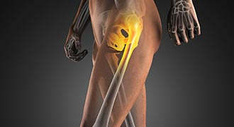 Lower limb joint injections