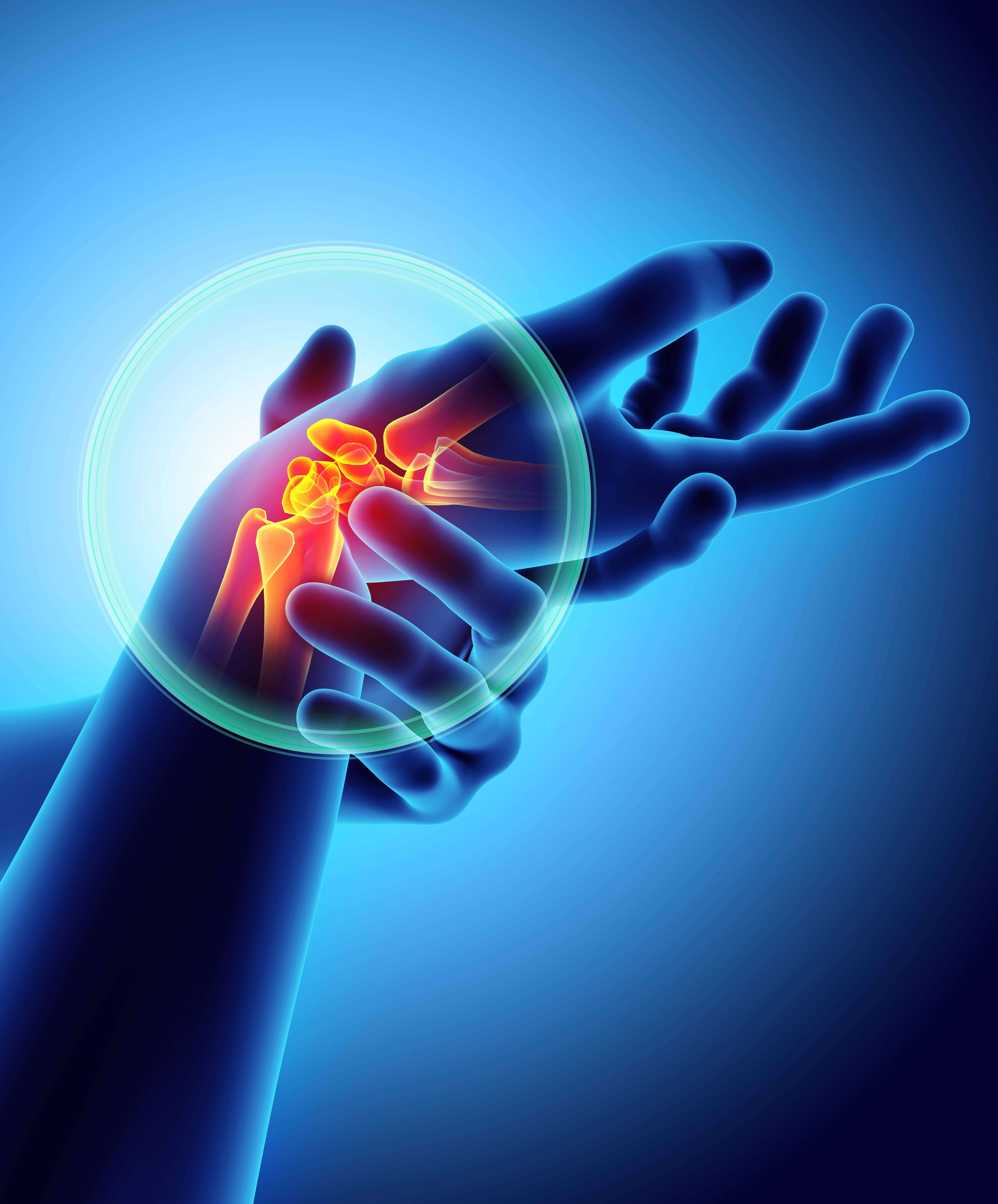 Free talk: sports injuries to the hand, wrist and elbow