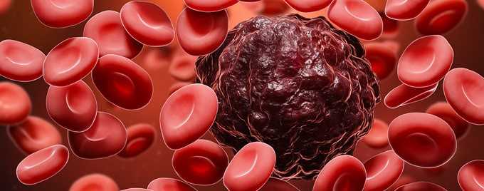 Image showing a cancer cell among blood cells