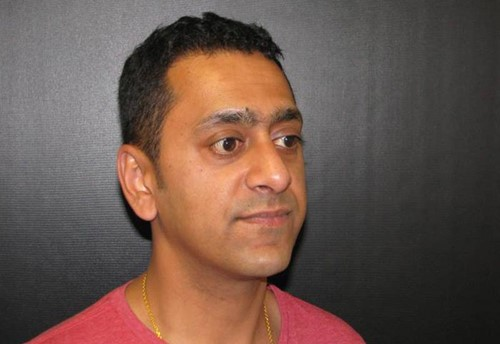 Mr Alpesh Pancholi after his rhinoplasty